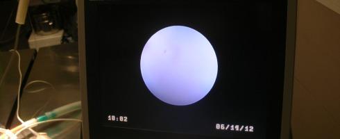 Aquí vemos el monitor, donde salen las imágenes obtenidas por el endoscopio.