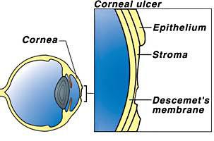 Ulceras corneales que curan, otras que se complican (6/6)