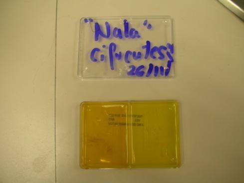 Placa de cultivo para dermatofitos.Se deposita pelo de la zona afectada y se espera el crecimento y el cambio de color del medio (de amarillo a morado).