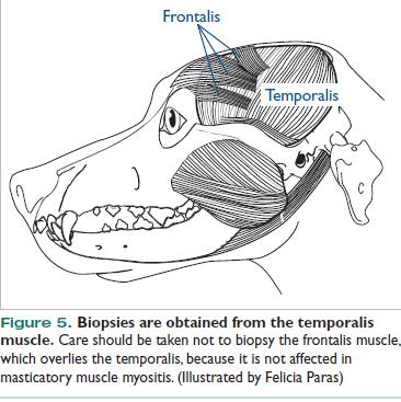 La biopsia debe hacerse del músculo temporal y no del músculo frontal.