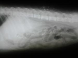 Otra imagen que muestra la presencia de cuerpos extraños en el intestino.