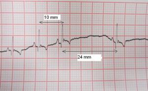 El electrocardiograma de Lola muestra cómo el espacio entre latidos se alarga más de 2 veces respecto a lo normal.