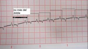 Tras administrar Atropina intravenosa, el intervalo entre latidos de Lola se reduce.