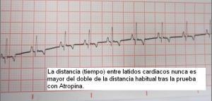 El electrocardiograma de Lola se normaliza.