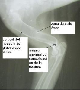 Los huesos de Newton han cicatrizado: hay callos óseos y han recobrado la opacidad normal.