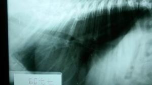 Radiografía lateral de tórax de Lluna.