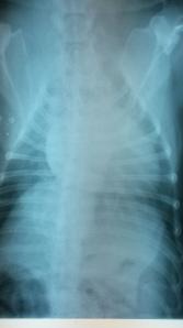 Radiografía Dorsoventral de tórax de Lluna