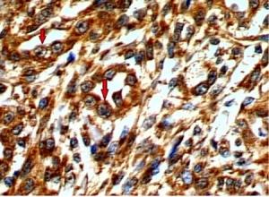 Fotomicrografía de preparación inmunohistoquímica que muestra un gran número de células neoplásicas marcadas por la actividad de la ciclooxigenasa-2 (flechas rojas) en un caso de carcinoma primario no metastásico de una hembra canina. 640X.