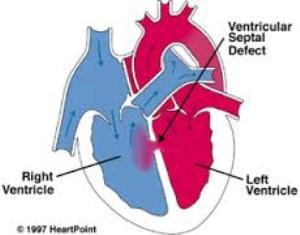 defecto septo ventricular -enfermedadclinica.com