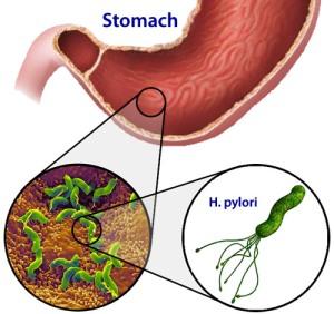 helicobacter-pylori (1)