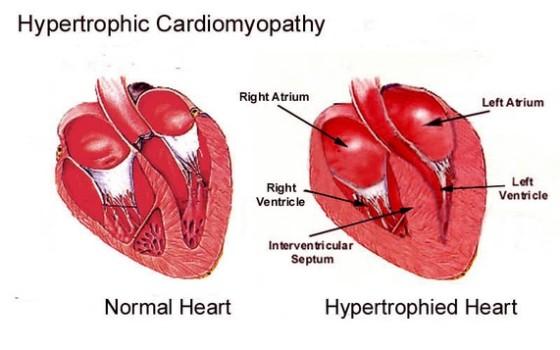 Hipertrofia cardíaca felina -www.clubfelinodemadrid.es